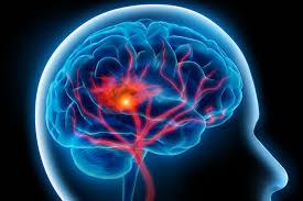 Derrame cerebral / ACV