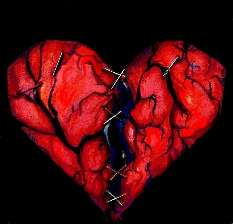 dependencia afectiva en el amor