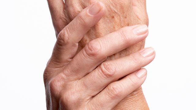 artritis / dolor