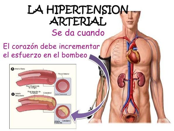la-hipertension-arterial