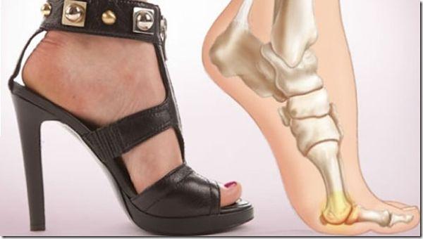 dolor-en-los-pies_tacos_600