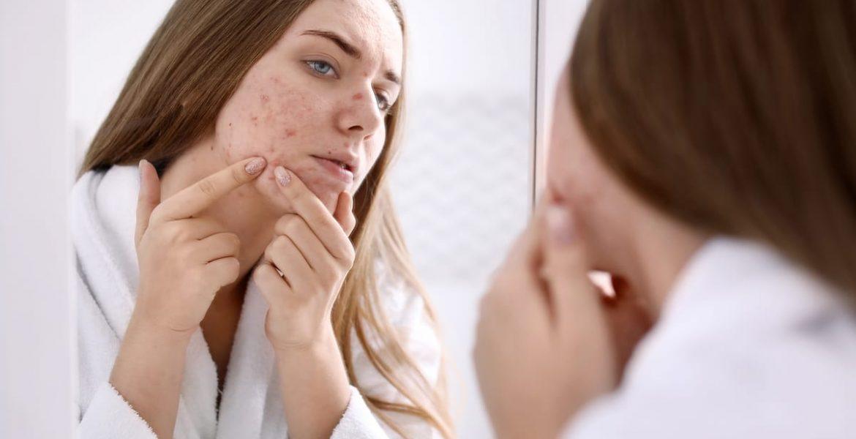 cómo borrar cicatrices de acné