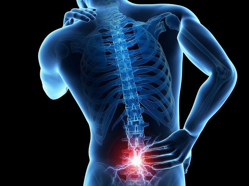 Espondilolistesis: cuando el dolor de espalda afecta la calidad de ...