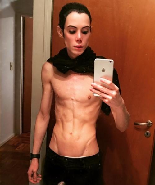 felipe petinatto anorexia