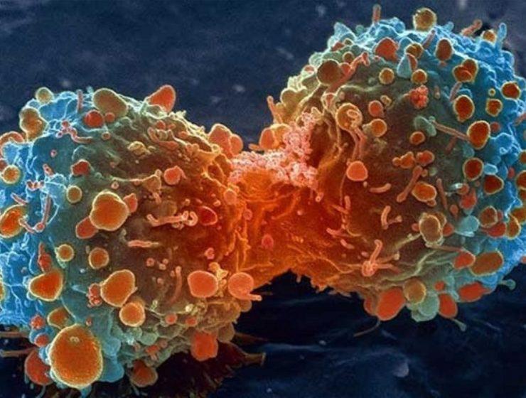 tumores benignos y malignos