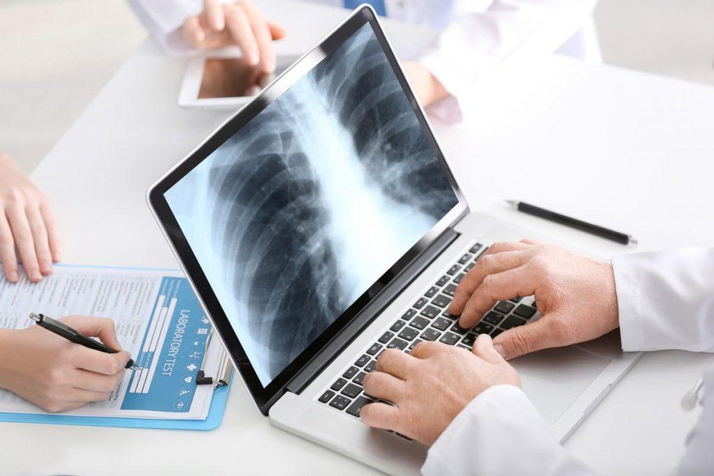 fibrosis quistica cancer pulmon