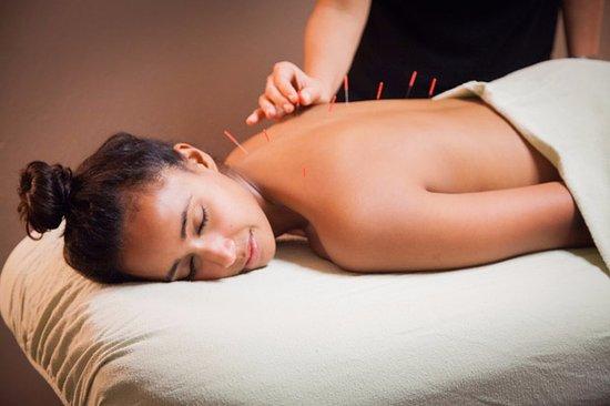 acupuntura para dormir mejor
