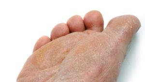 qué es el pie de atleta