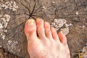 cómo tratar los hongos de los pies