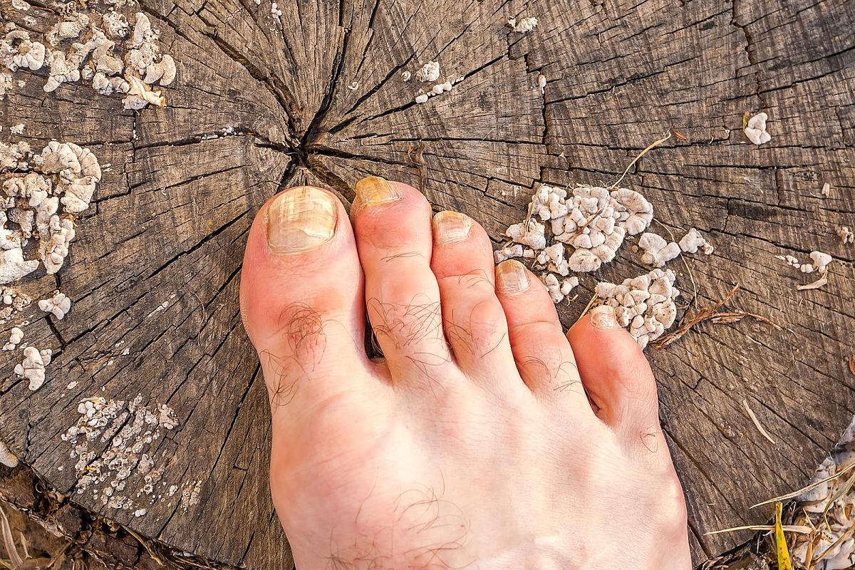 cómo tratar los hongos de los pies en casa