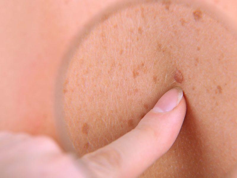 síntomas cancer de piel