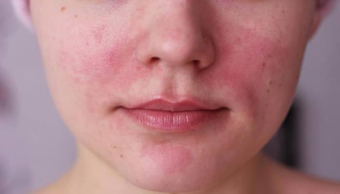 el acne rosacea tiene cura