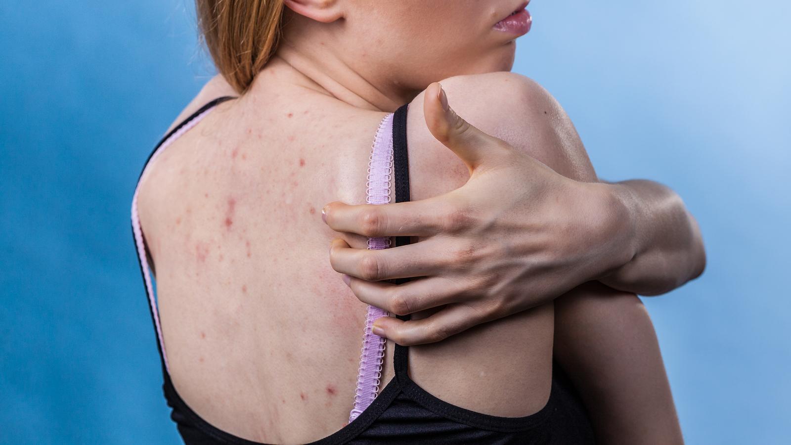 Manchas oscuras en la piel
