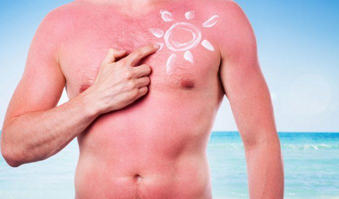 protector solar cancer de piel